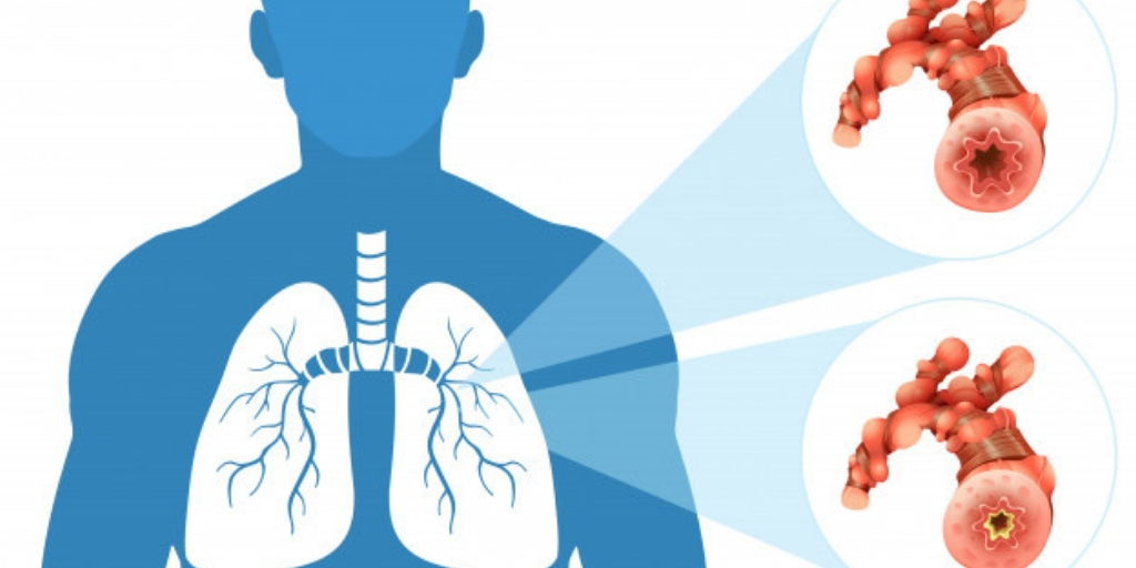 lungs ko majboot karne ke upay in hindi, Medicines, Online Medicines, Order Medicine Online, Online Pharmacy, Buy Medicine, Purchase Medicine, Medicine Home Delivery, Pharmacy Near Me, Medical Store Near me, Fast Delivery of Medicine, Discount On Medicines, Book Appointment With Doctor, Online Doctor, Doctor Consultation Online, Second Opinion With Doctor