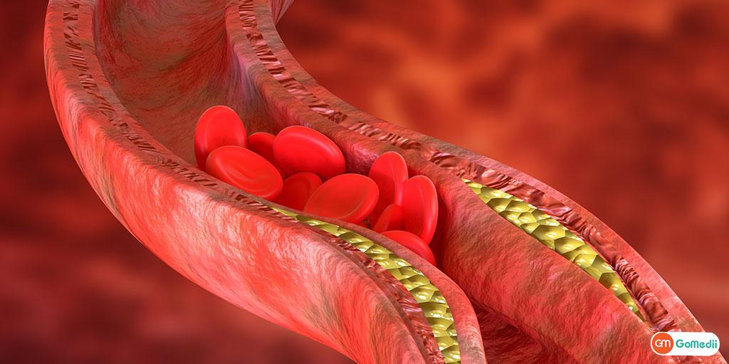 thalassemia kya hai in hindi
