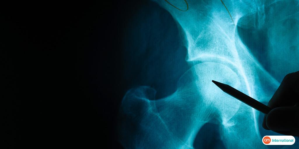 बोन मैरो ट्रांसप्लांट क्या है?(Bone marrow transplant in hindi)