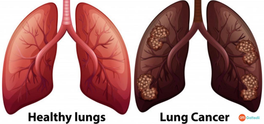 fefdo-ka-cancer-ka-illaj-in-hindi फेफड़ों का कैंसर का इलाज