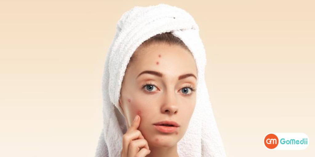 अपने चेहरे पर दाने (Pimple) हटाने के लिए क्या करें? - GoMedii